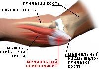 Медиальный эпикондилит локтевого сустава лечение тейпирование суставов пособие
